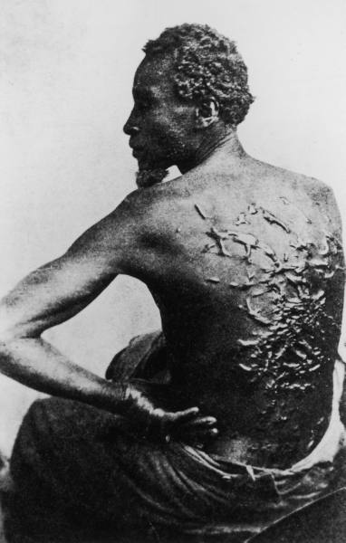 Rear view of former slave revealing scars on his back from savage whipping, in photo taken after he escaped to become Union soldier during Civil War, 1863